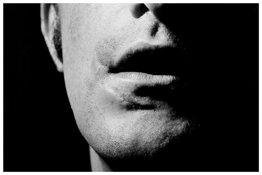 cicaactrices – boca